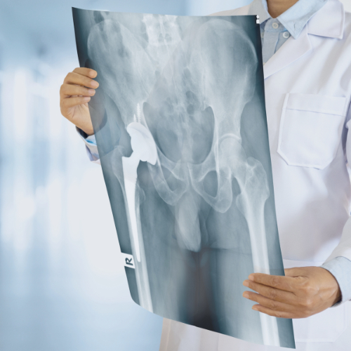 Röntgenonderzoek bij diagnosestelling heupklachten
