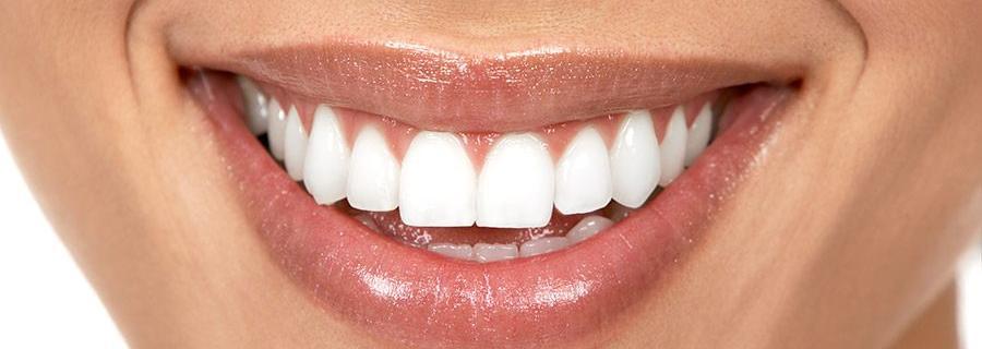 Natuurlijk witte tanden tips