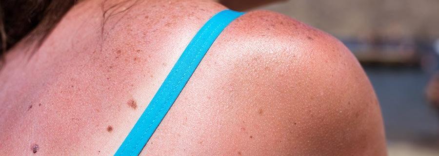 Natuurlijke middeltjes tegen zonnebrand (om de pijn te verlichten)