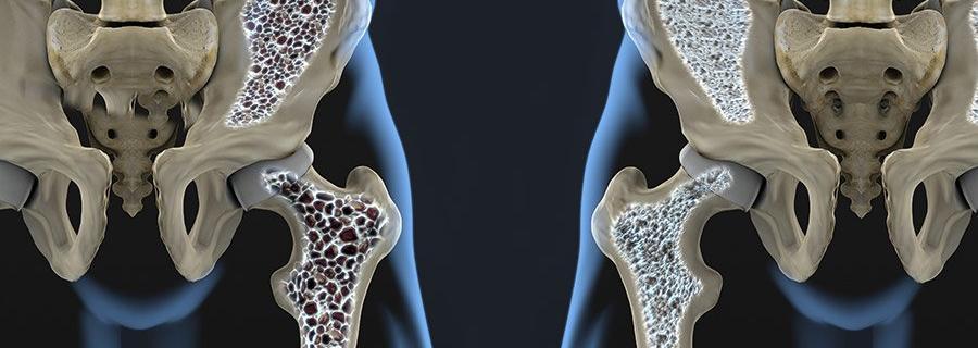 Osteoporose voorkomen en behandelen