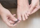 Ingegroeide teennagel verwijderen en behandelen